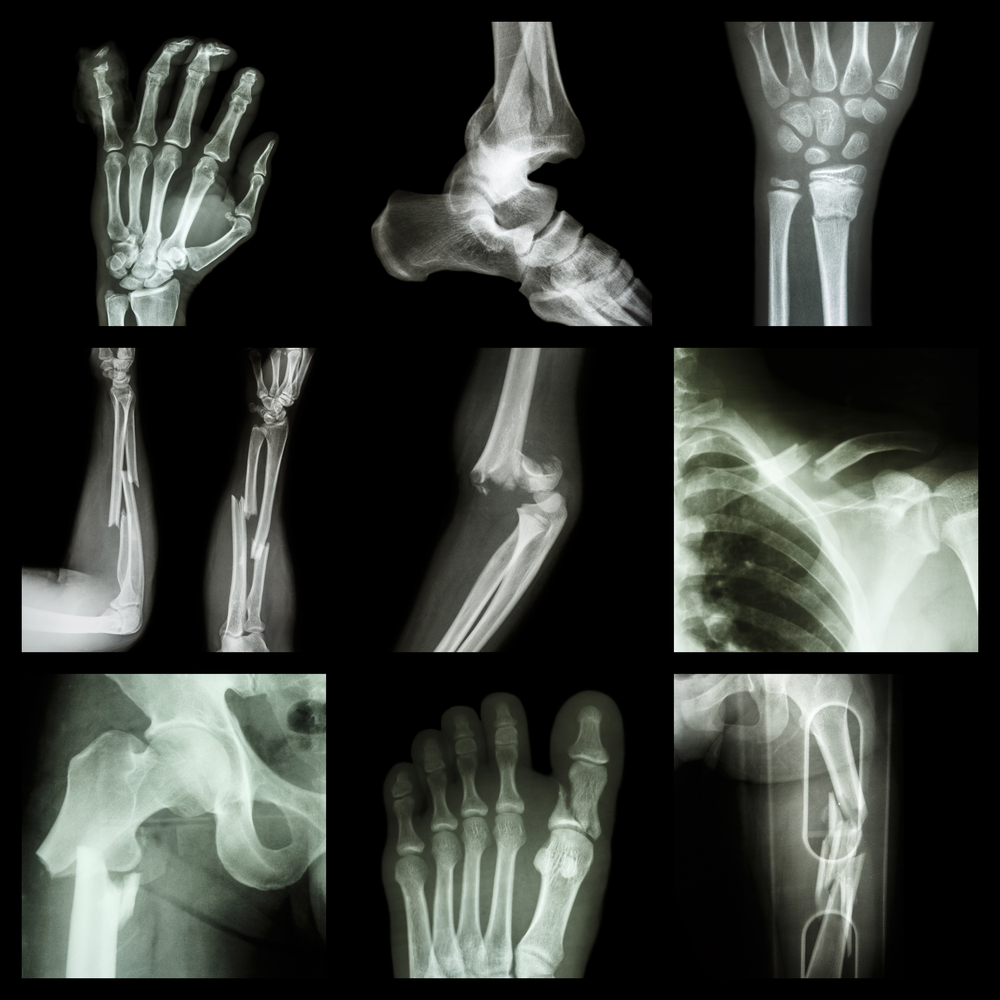 collection of x-rays - fracturted bones